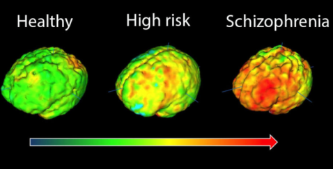_86138691_brainscans.png